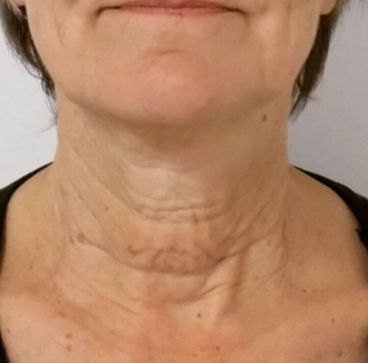 San Diego Neck Lift Surgery Before