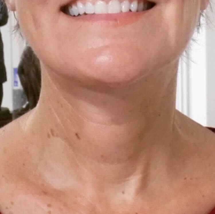 San Diego Neck Lift Surgery After