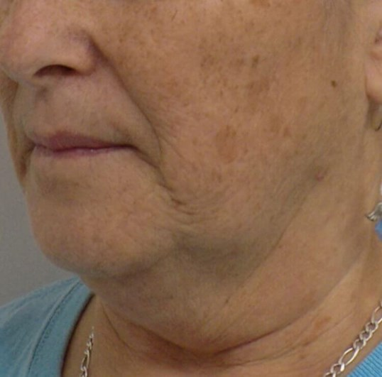 San Diego Neck Lift & Laser Before
