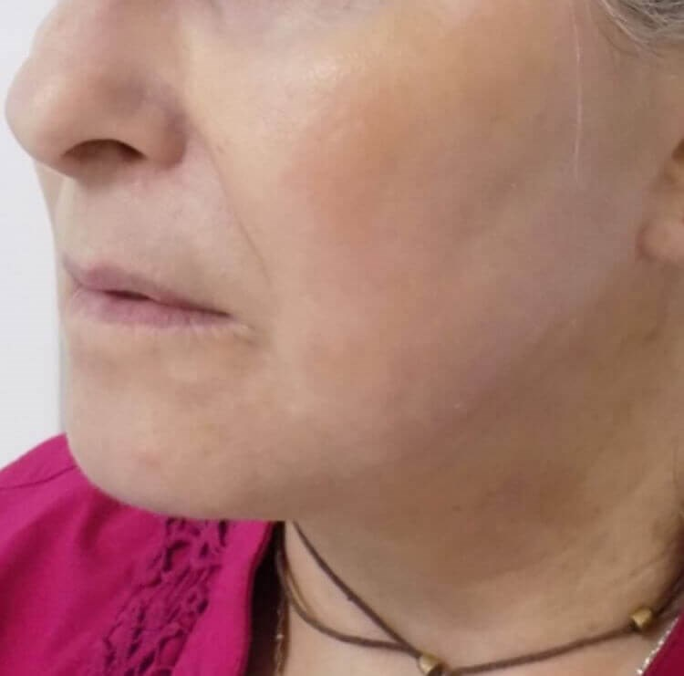 San Diego Neck Lift & Laser After