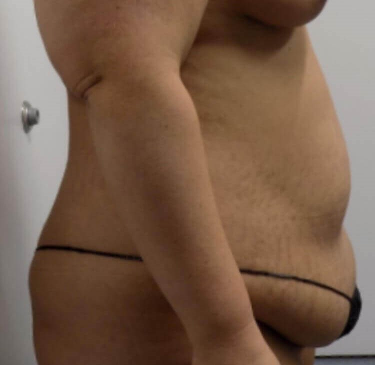 Side View of Tummy Tuck Before