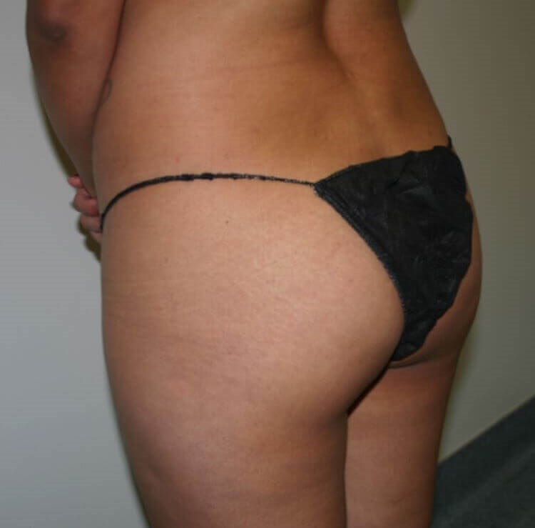San Diego Brazilian Butt Lift Before
