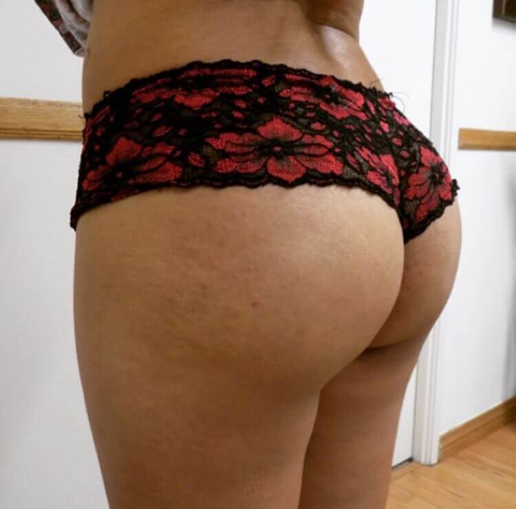 San Diego Brazilian Butt Lift After