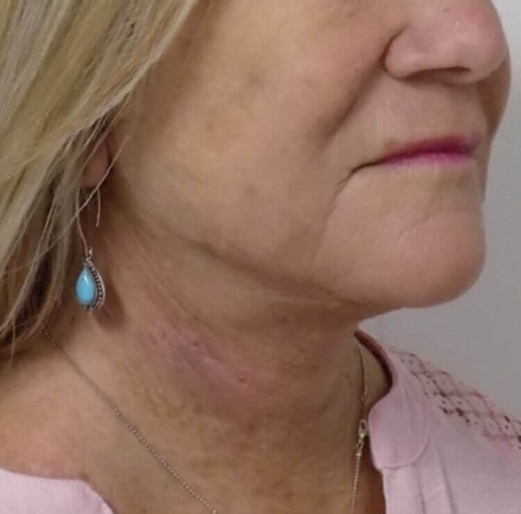 San Diego Neck Lift After