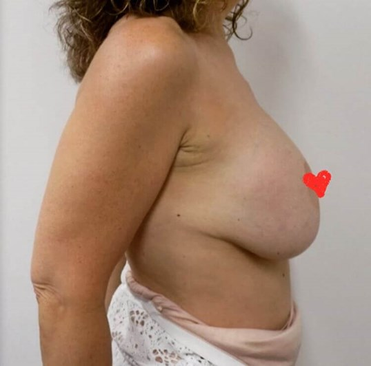 San Diego Breast Lift After