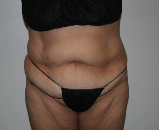 Mission Valley Tummy Tuck Before