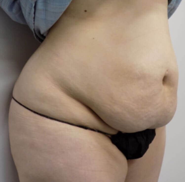 San Diego  Abdominoplasty Before