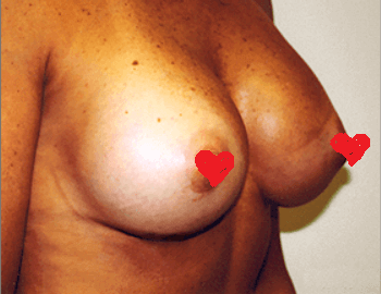 San Diego Breast Enlargement After