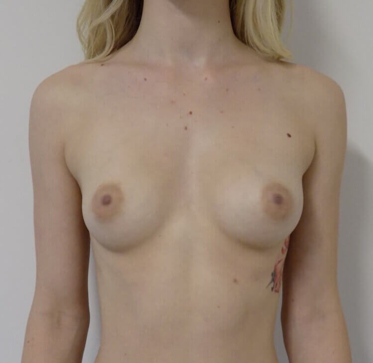 El Cajon Breast Augmentation Before