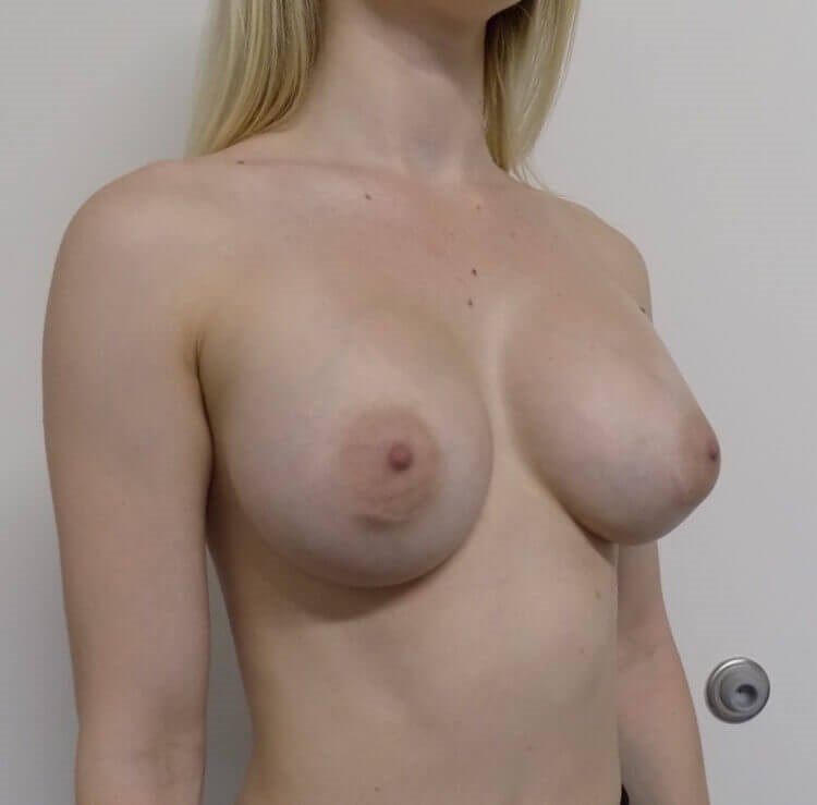 El Cajon Breast Augmentation After