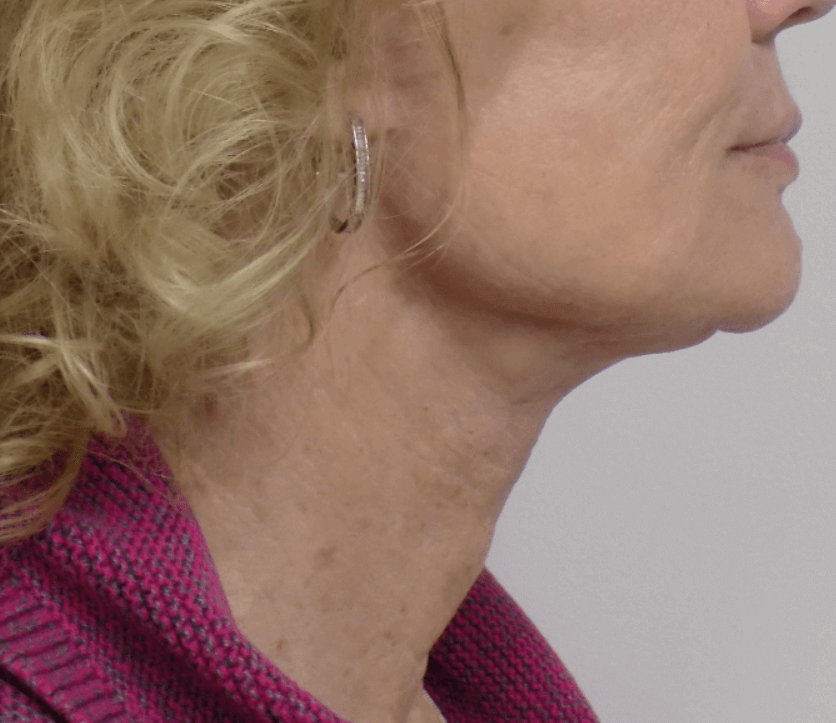 San Diego Natural Neck Lift After