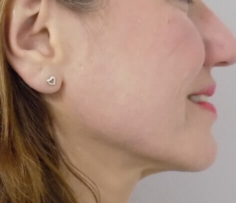 San Diego Scar Laser Treatment After
