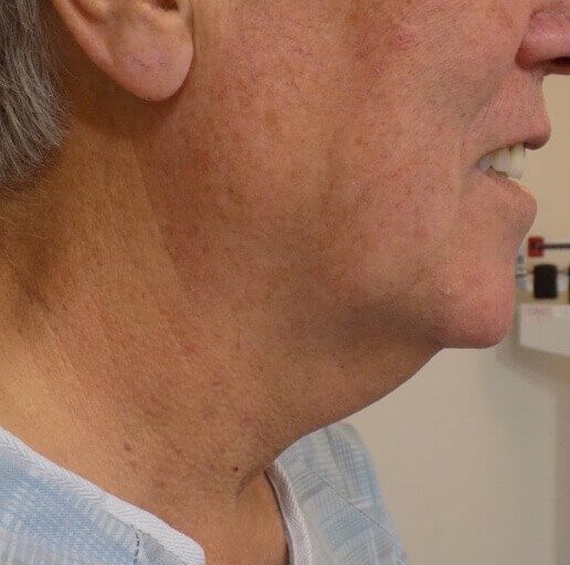 San Diego Neck Lift Before