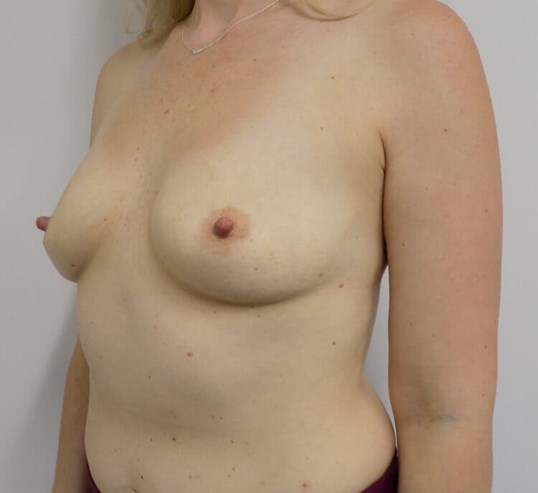 Lakeside Breast Augmentation Before