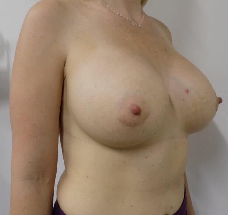Lakeside Breast Augmentation After