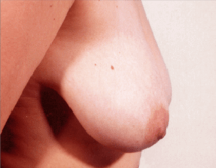 San Diego Breast Lift Before